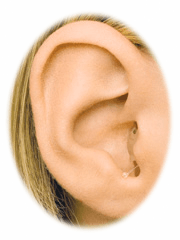 Picture of In the ear hearing aid completely in the ear